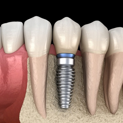 Image of dental implants in Springfield replacing a tooth.